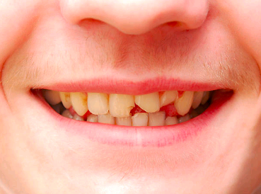 chipped-or-broken-tooth