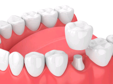 dental-crown