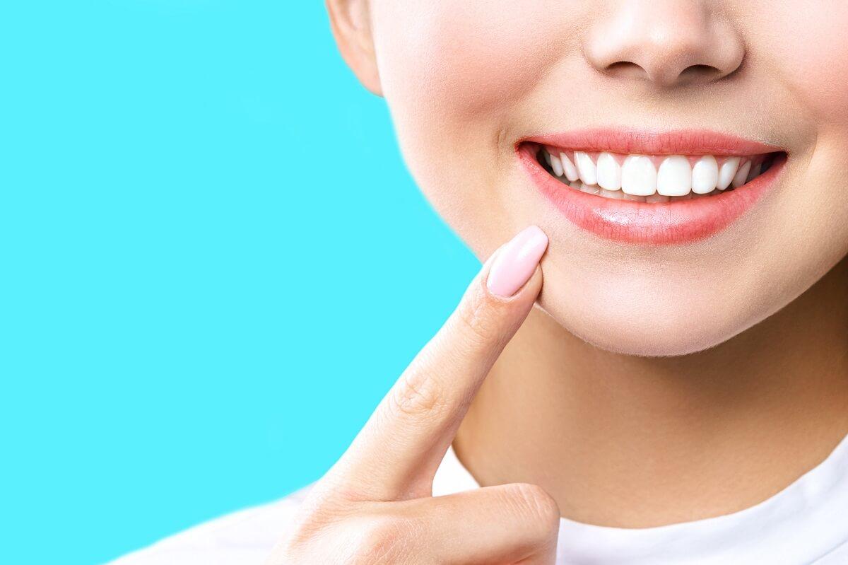 Teeth-Whitening-Cost-2