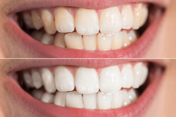 Teeth Whitening Services Hamilton