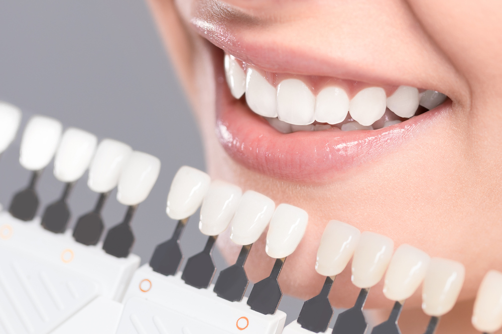 Zoom Teeth Whitening Hamilton