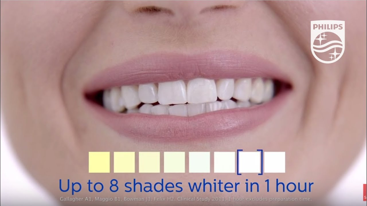 Zoom Teeth Whitening Results