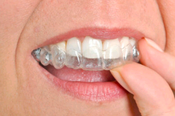 invisalign-clear-braces
