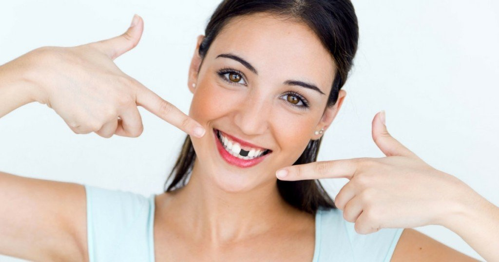 What Happens When You Lose A Tooth?