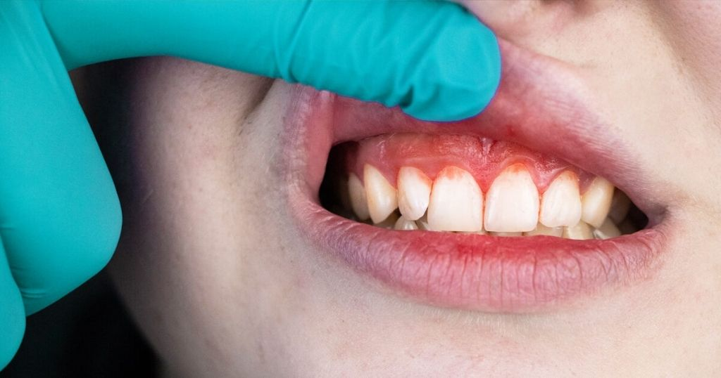 Plaque, tartar, gingivitis – Do you understand the difference?